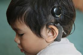 Hearing Impairment Hearing Loss Still A Challenge For Kids Pursuit By The