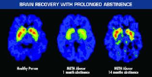 Blog Gorski's Recovery And Alcoholism Neurocognitive Post Acute Terry paw In Withdrawal