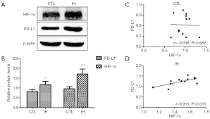 Intermittent Hypoxia Enhances The Tumor Programmed Death Ligand 1