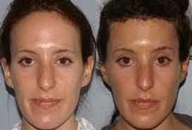 forehead reduction san francisco ca