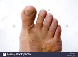 I love hairy feet