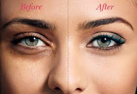 easy ways to get rid of dark circles under your eyes