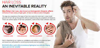 rejuvalex hair growth. Plain Rejuvalex Rejuvalex Hair Growth Review UPDATED 2017 U2013 Does This Product Really Work  Or Scam And Growth U