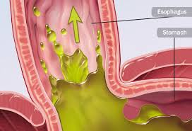 Acid Reflux Diet Chart Foods That Fight Gerd