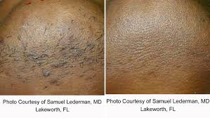 coolglide laser hair removal lakes