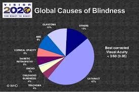 Eye Diseases Chart World Ophthalmology Congress Ophthalmology Conferences