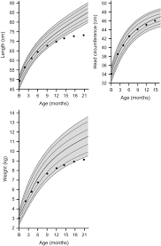 Early Recognition Of Growth Abnormalities Permitting Early