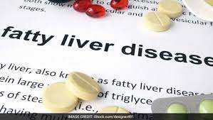 Diet Chart For Fatty Liver Grade 3 Fatty Liver Diet Symptoms Causes Diet Tips And Foods To