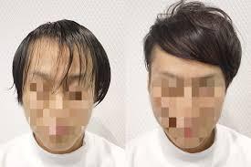 M字ハゲをカットでカバー 植毛美容師が提案するヘアデザイン