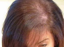 causes and symptom of female pattern baldness