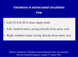 Doppler Ultrasound Of Carotid Arteries