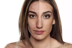 acne is the most mon skin condition and occurs during rty as age changes when the sebaceous glands activate but it can occur at any age