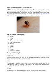 How to get rid of bed bug bites treatement tips - copy