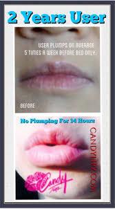 candylipz lip plumper long term user