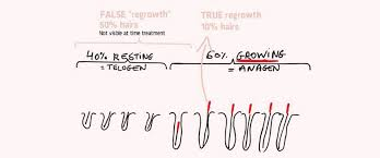 does hair regrow after electrolysis
