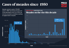 How Bad Is The Measles Comeback Heres 70 Years Of Data