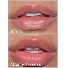 bee venom hydrating volumizing lip balm plumper w manuka honey shea er 10g