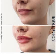 lip injections cosmetic injectable