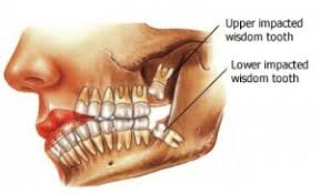 What are wisdom teeth removal costs without dental insurance? What Happens If You Don T Take Out Your Wisdom Teeth Austin Aos