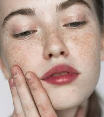 hyperpigmentation causes symptoms types and treatments