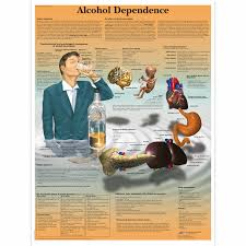 Alcohol Abuse Chart Alcohol Dependence Chart