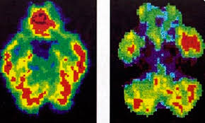 of maggots and brain scans boston review of maggots and brain scans