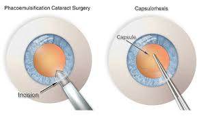 Cataract Surgery A Step By Step Guide To Phacoemulsification