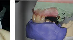 Teeth Setting Figure 8 From Aesthetic Possibilities In Removable