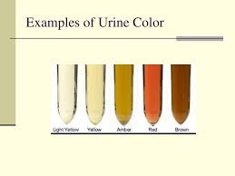 Urine Color Chart Amber Ppt Examination Of Urine Powerpoint Presentation Free