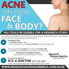 murphy tx acne study