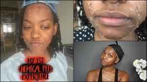 chemical l experience 1 how i removed my dark spots darkspotremoval
