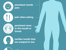 tonsil cancer overview and more