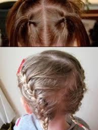 alopecia infantil
