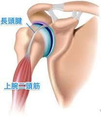 肩 痛い 筋 トレ