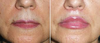 lip lifts a procedure to consider