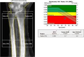 A Practical Approach To Interpretation Of Dual Energy X Ray