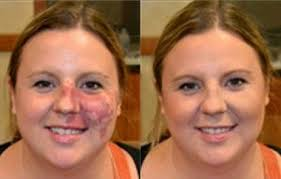 camouflage makeup for tattoos cover up dark circles birthmarks s