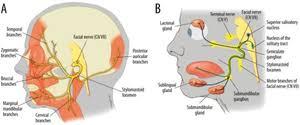 Cranial Nerve Abnormalities Wikem