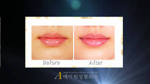 korea mouth corner lift before after plastic surgery you