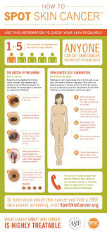 Mole Chart For Skin Cancer How To Check A Mole On Your Skin For Cancer Business Insider