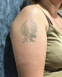 At Pashkovalenatattoo татуировка барнаул сведение тату лазером