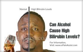 Bilirubin Levels Chart Uk Can Alcohol Cause High Bilirubin Levels