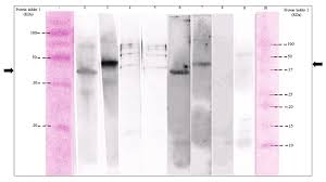 Western Blotting Of Recombinant Protein Line 1 Protein Ladder