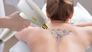 аппараты для удаления татуировок оборудование для удаления татуировок