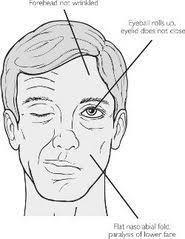 93243c6c9c12636bcf7fb48a522c0eee facial nerve damage info head trauma facial paralysis head on jujuphysio template