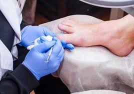 Fungal Nail Treatment - from Dundrum Cosmetic Laser Clinic