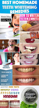 homemade teeth whitening remes