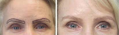 eyebrow hiar transplant