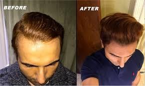 minoxidil for receding hairline reddit