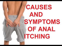 Causes of Anal Itching | Symptoms of Anal Itching - YouTube